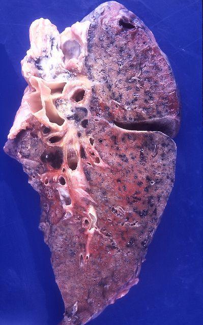 放射性肺炎