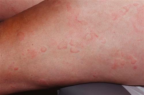 日光性荨麻疹