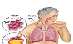 病毒性肺炎