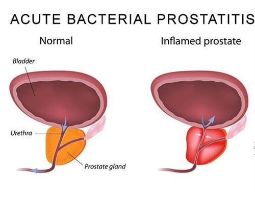细菌性前列腺炎