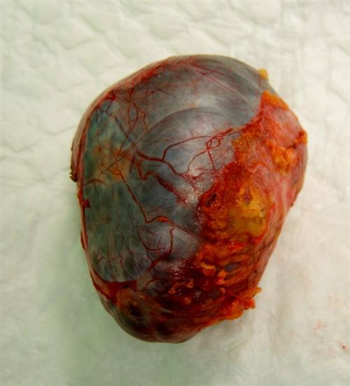 腹膜后肿瘤