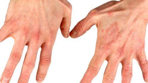 过敏性皮炎