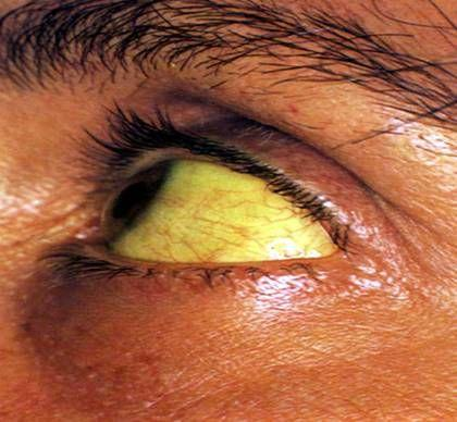 黄疸性肝炎
