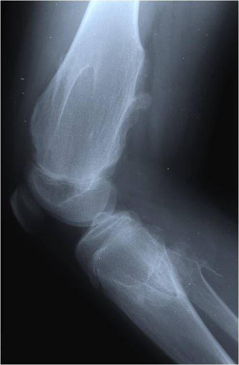 多发性软骨瘤
