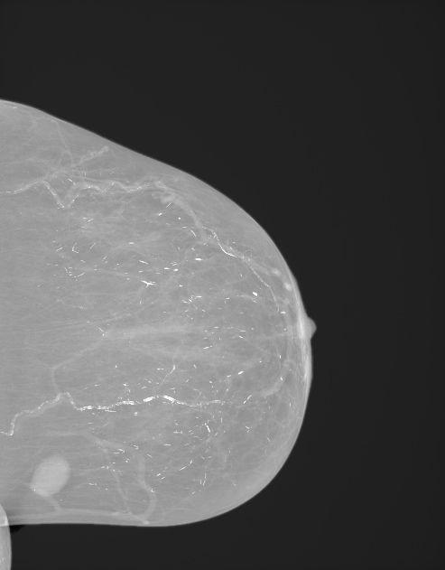 浆细胞性乳腺炎