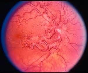 蔓状血管瘤