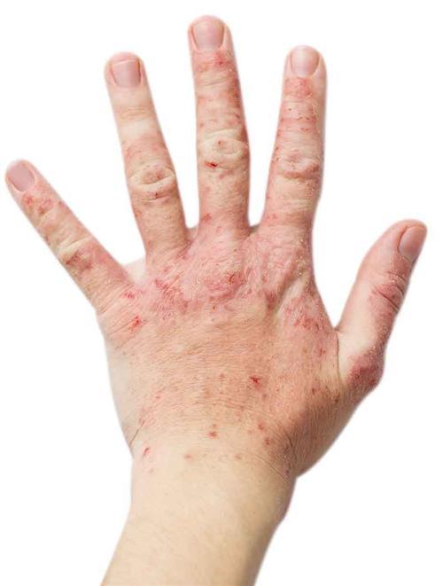 异位性皮炎