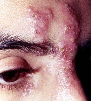 眼部带状疱疹
