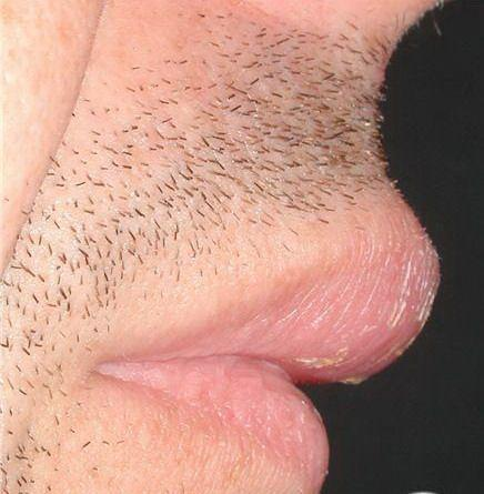 肉芽肿性唇炎