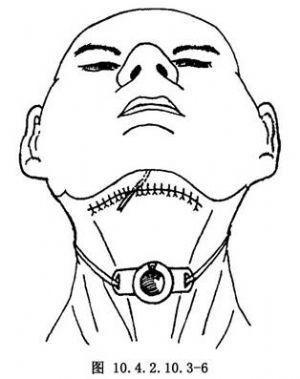 口咽良性肿瘤