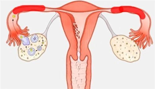 输卵管堵塞