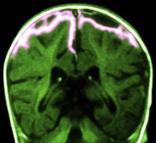 铜绿色假单胞菌脑膜炎