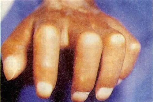 急性脂肪皮肤硬化症