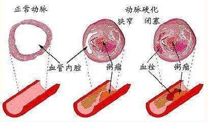 动脉硬化闭塞症