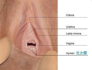处女膜修补术