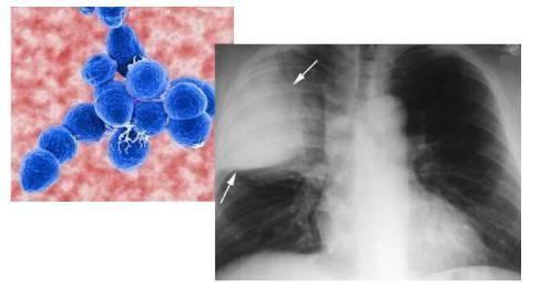 肺诺卡菌病