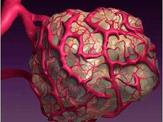 颅内转移瘤