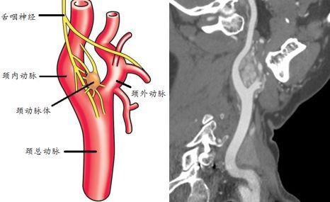 颈动脉体瘤