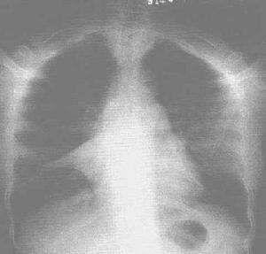 小儿肺不张
