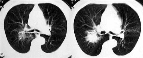 肺炎性假瘤