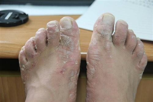 水疱型脚气
