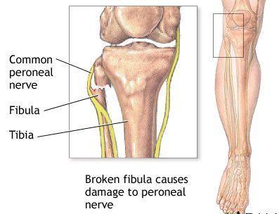 腘肌腱损伤