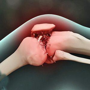 膝关节创伤性滑膜炎