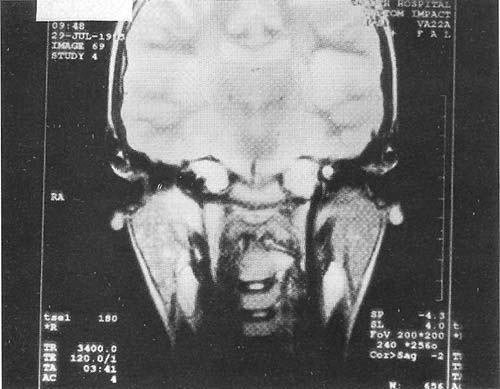 化脓性腮腺炎