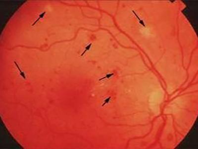 视网膜静脉周围炎