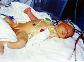 新生儿ABO溶血病