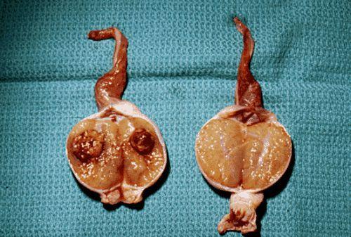 睾丸淋巴瘤