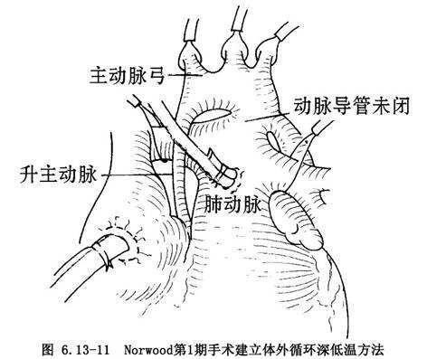 Nezelot综合征