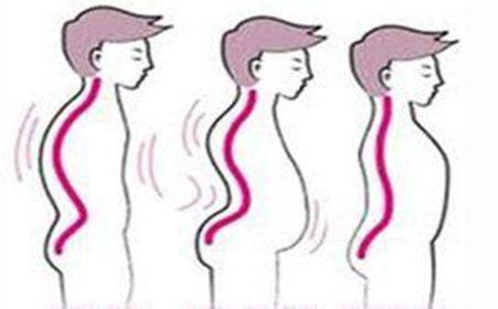 先天性副肌强直症