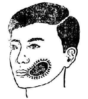 口腔颌面部损伤