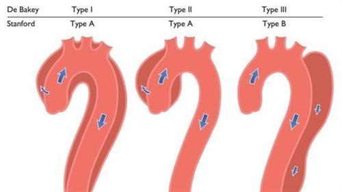 周围动脉瘤