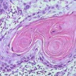 头部鳞状细胞癌