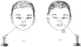 婴幼儿型内斜视