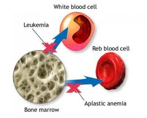 小儿肝炎再生障碍性贫血综合征