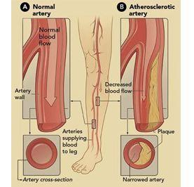 小腿动脉损伤