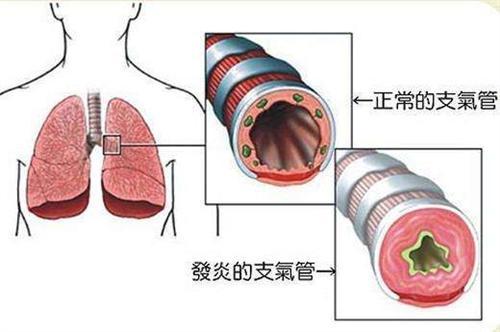 急性气管-支气管炎