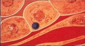 慢性病毒性肝炎