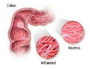 慢性阿米巴病肠炎