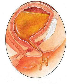 气性膀胱炎