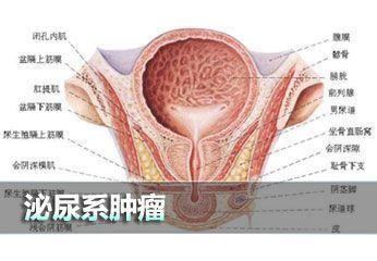 泌尿系肿瘤