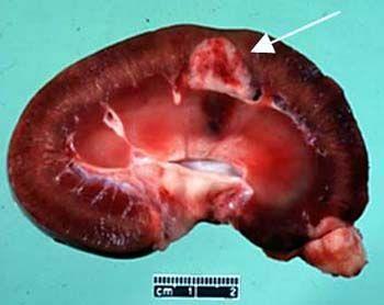 泌尿道肿瘤皮肤转移