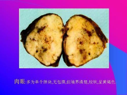 甲状腺髓样癌