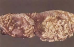 皮肤念珠菌病