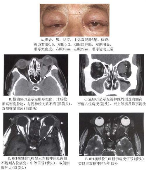 眼眶炎性假瘤
