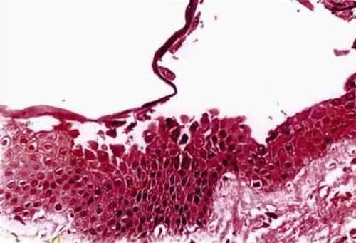 红斑型天疱疮