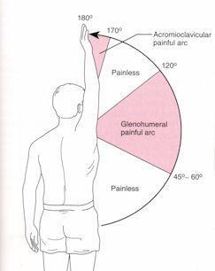 肩峰下滑囊炎